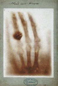 рентгенограмма руки берты рентген