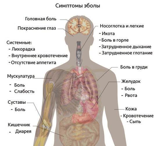 Рис.2. Симптомы лихорадки Эбола напрямую следуют из неконтролируемого воспаления, приобретающего системный характер