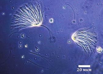 Рис. 2. Сперматозоиды Lasius pallitarsis. Фазово-контрастная микроскопия [Burnett, Heinze, 2014]