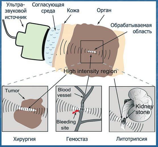 Различные применения мощного фокусированного ультразвука в медицине