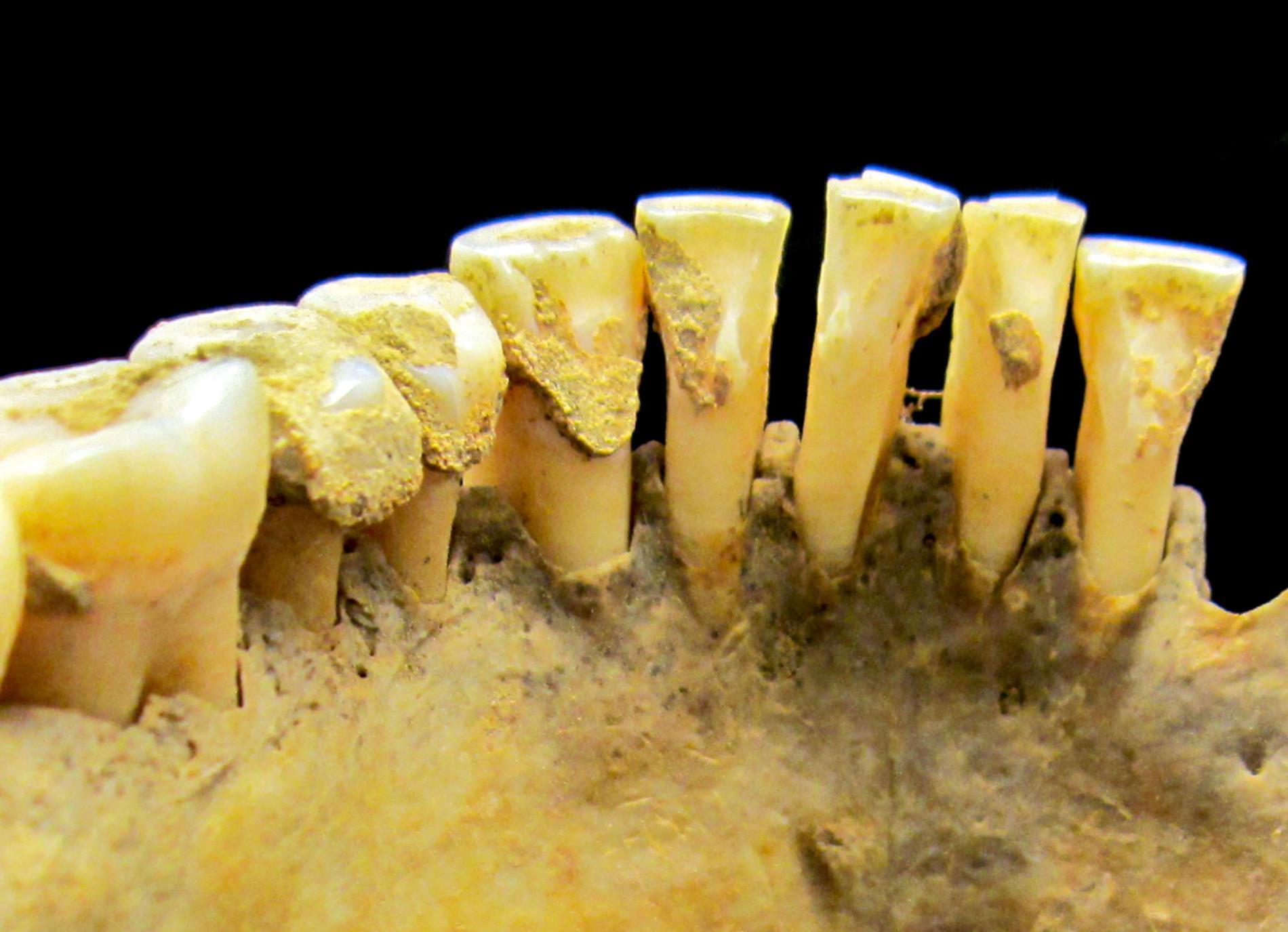 Зубной камень — отличный источник древних белков, употреблявшихся в пищу