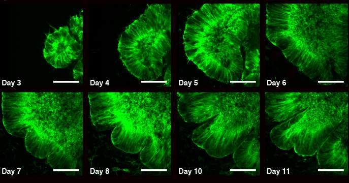 Образование складок в тканях коры головного мозга. Илл. из статьи Eyal Karzbrun